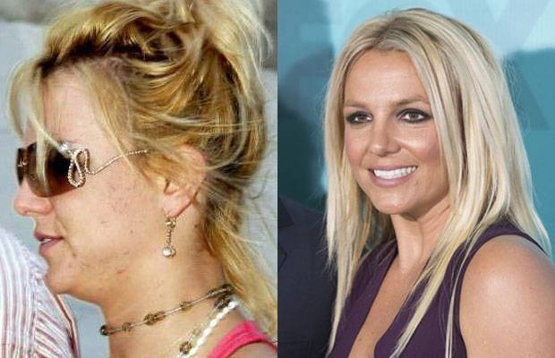 Celebrities Without MakeUp Britney Spears