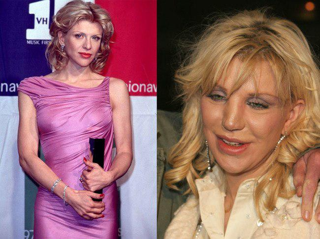 10 Before And After Celebrity Plastic Surgery Fails That