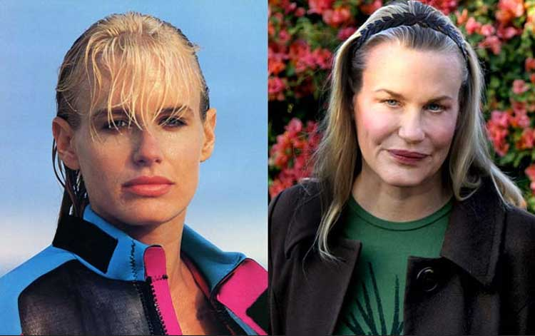 Celebrity-Plastic-Surgery-Fails-Before-And-After-Daryl-Hannah