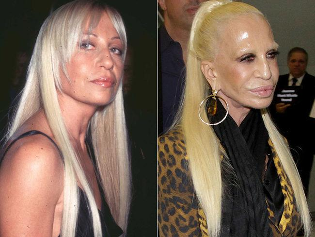 Celebrity-Plastic-Surgery-Fails-Before-And-After-Donatella-Versace