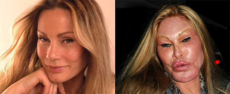 Celebrity-Plastic-Surgery-Fails-Before-And-After-Jocelyn-Wildenstein