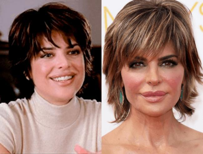 celebrity-plastic-surgery-fails-before-and-after-lisa-rinna
