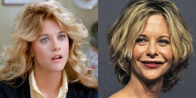 celebrity-plastic-surgery-fails-before-and-after-meg-ryan