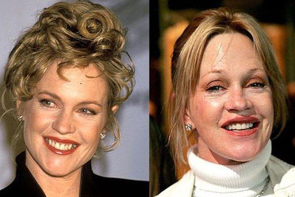 celebrity-plastic-surgery-fails-before-and-after-melanie-griffith