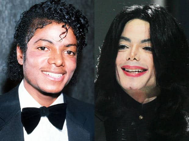 Celebrity-Plastic-Surgery-Fails-Before-And-After-Michael-Jackson