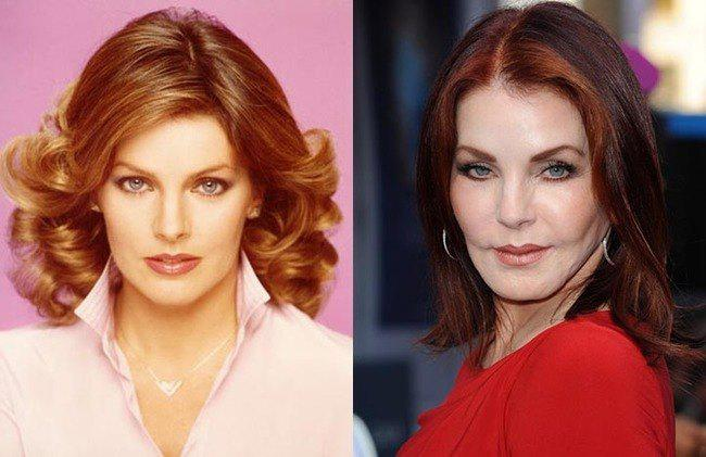 Celebrity-Plastic-Surgery-Fails-Before-And-After-Priscilla-Presley