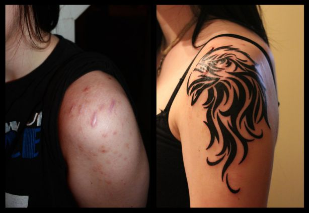 Tattoos-Covering-Scars