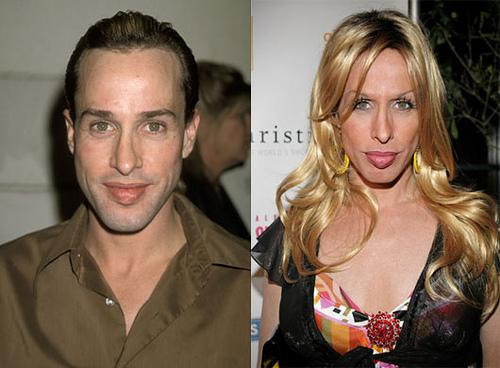 Transgender-Celebrities-Before-And-After-Alexis-Arquette