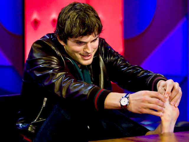 famous-celebrities-with-disabilities-ashton-kutcher-webbed-toes
