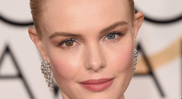 famous-celebrities-with-disabilities-kate-bosworth-eyes-color