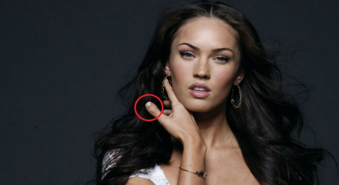 famous-celebrities-with-disabilities-megan-fox-thumb